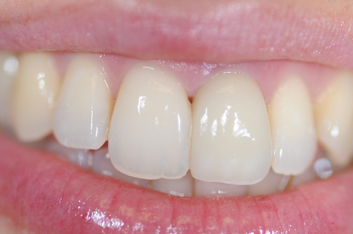 E-max porcelain crown on central tooth
