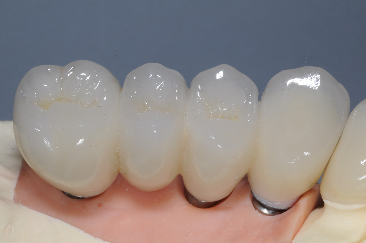 Full Arch Upper Zirconia Porcelain Crown