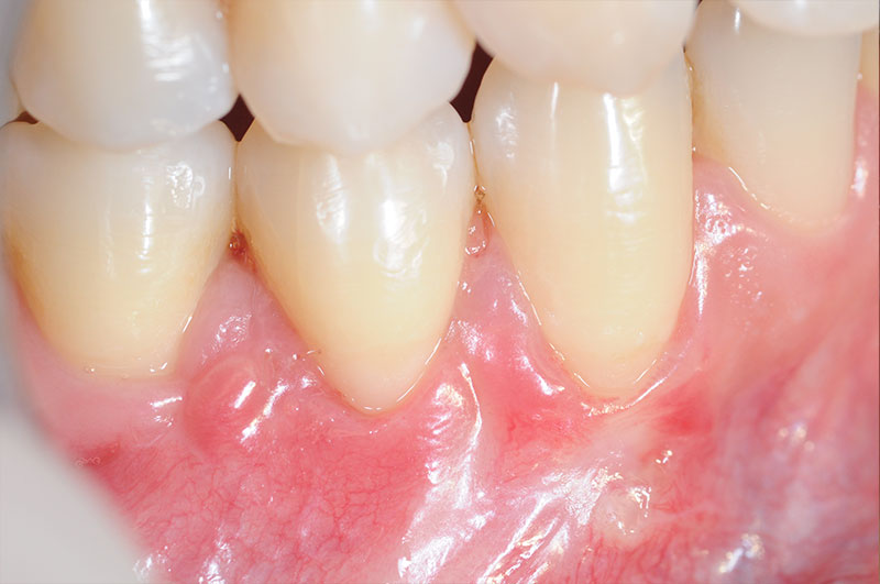 Graft Tissue For Correction Of A Gingival Recession