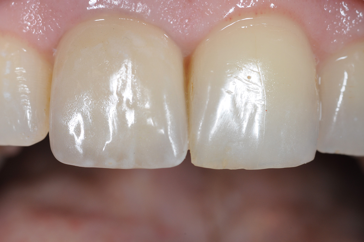 Extension of a clinical gum smile