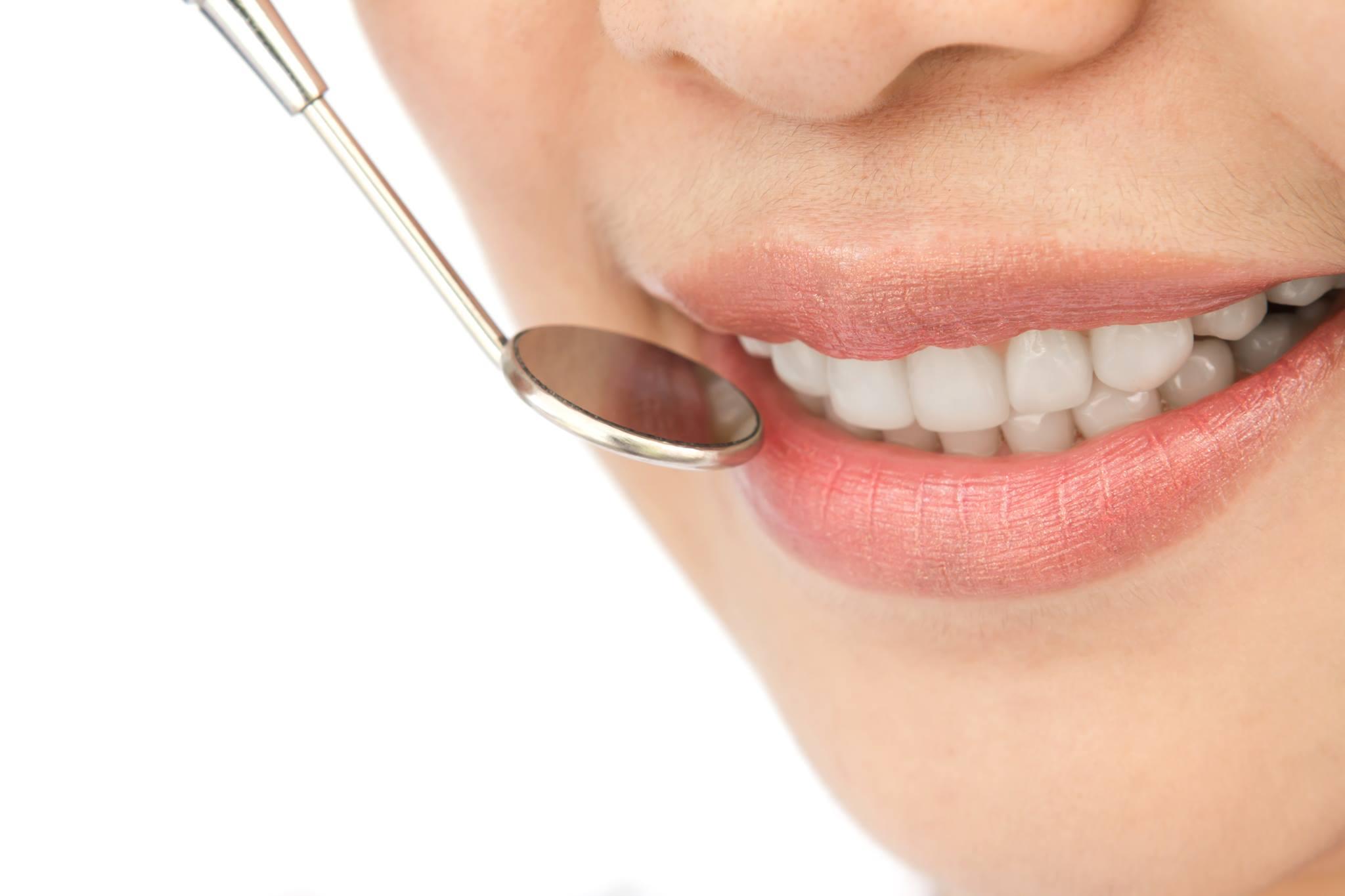 Pulizia dentale professionale: una sana abitudine per la salute dei tuoi denti