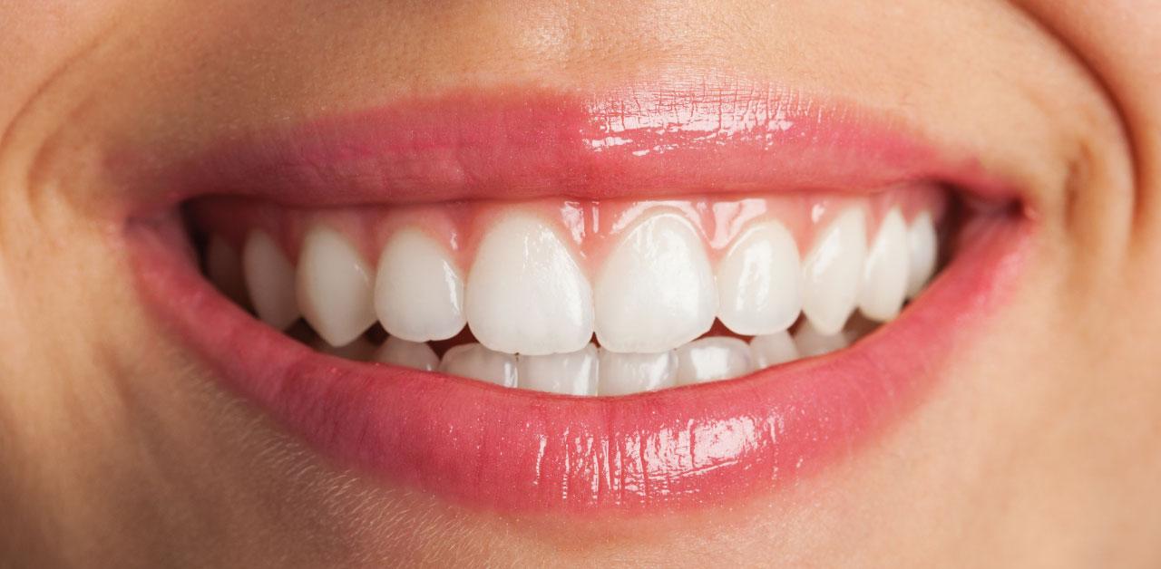 Prevenire ed eliminare le macchie dentali