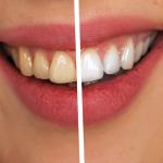 Sbiancamento dentale-Centre Point Dental Clinic