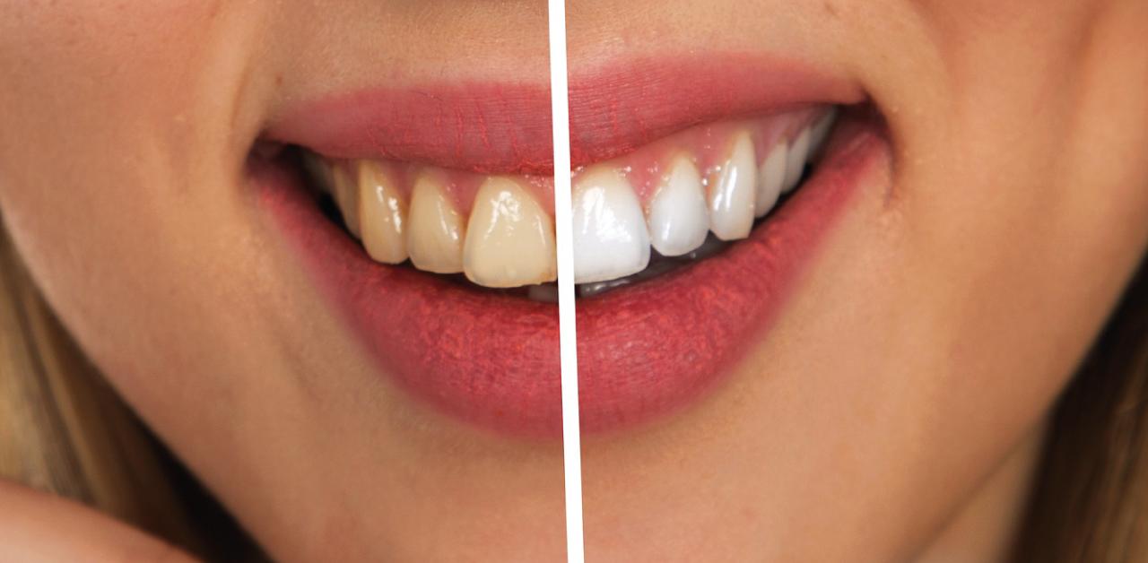 I vantaggi dello sbiancamento dentale