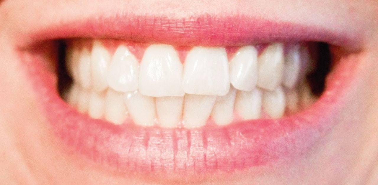 Sensibilità dentale: le principali cause di questo disturbo