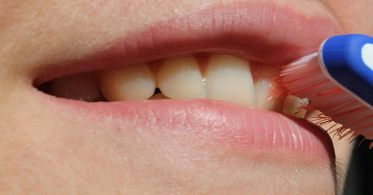 Denti gialli: scopriamo le principali cause e i possibili rimedi