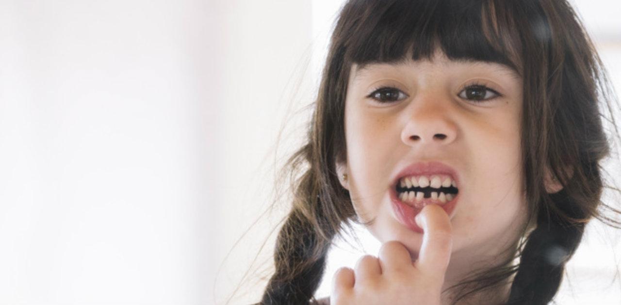 Caduta dei denti da latte nei bambini, età e sintomi